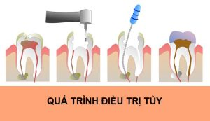 Root Canal Treatment Procedure 2