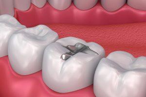trám răng kim loại