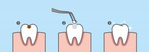 các bước trám răng