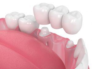 Capital Dental Lincoln Nebraska Denatl Crowns Dental Bridges min 1 1024x768 1