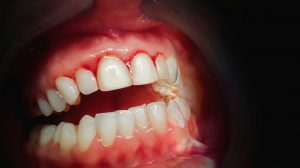 WhiteRabbit Dental 750 1 What You Can Do to Stop Your Gums from Bleeding 8.30.19