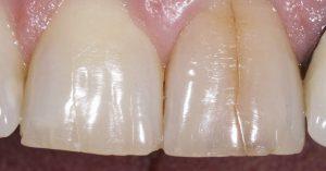 dentist fleet cracked tooth advice